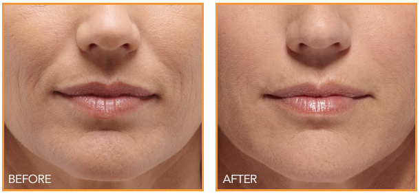 Juvederm treatments - Before & After
