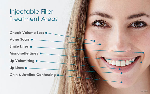 Injection Filler Treatment - Dermal Fillers